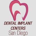 website reviews san diego dental implant centers
